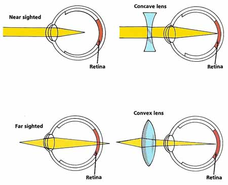 Corrective Glasses For Myopia